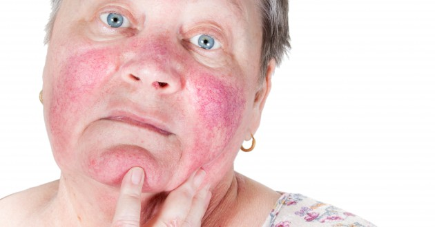 Understanding and treating rosacea